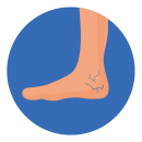 cracked heel illustration